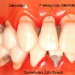 paradontose-200